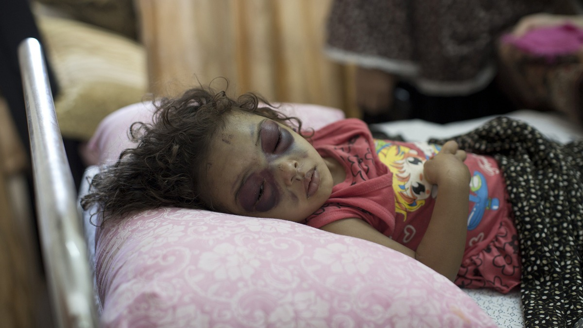 Palestinian-girl-injured